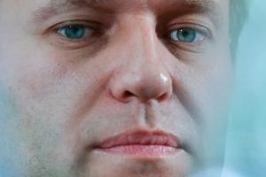 Алексей Навальный в коме после отравления